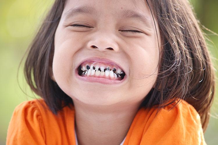 Dětské zubní kazy | Foto: Shutterstock