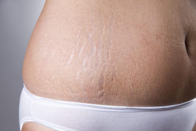 Těhotenské strie | Foto: Shutterstock