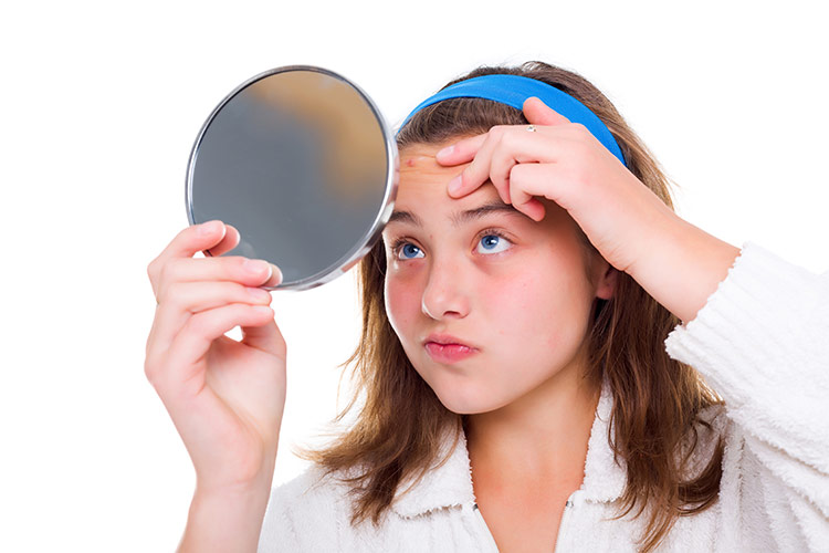 Akné v pubertě | Foto: Shutterstock